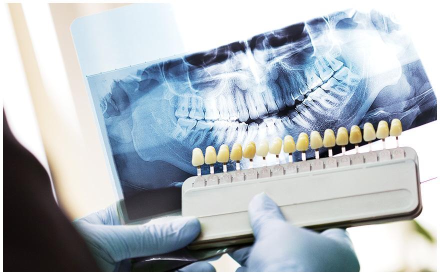 Osoba wrękawiczkach trzymająca różne rodzaje sztucznych zębów