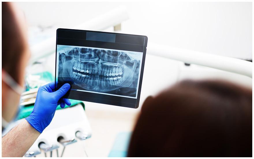 stomatolog przeglądający zdjęcie rentgenowskie